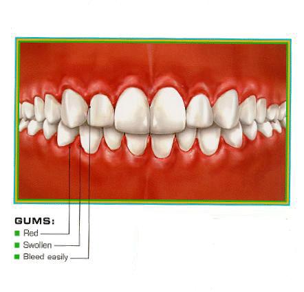gingivit-red