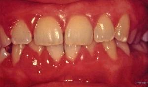 gingivit-red2