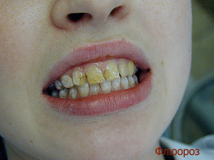 Флюороз от зубных паст