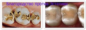 Пломбы из золота (стоматология)