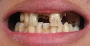 Пломба выпала из-за повышенное нагрузки на нее (много нет зубов)