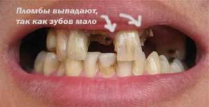 Пломба выпала из-за нагрузки (много нет зубов)