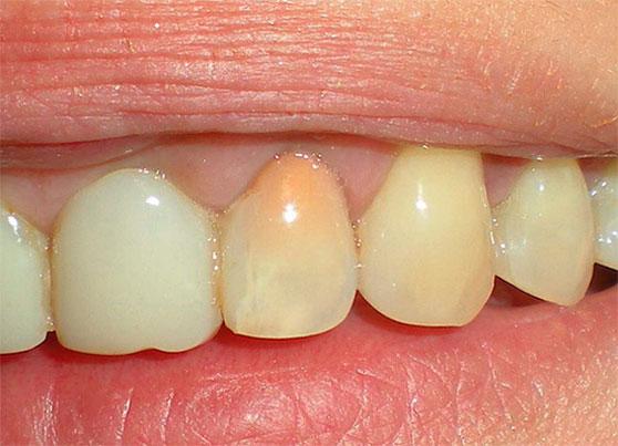 Розовый зуб